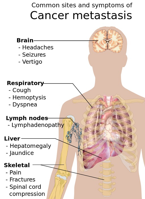Symptoms_of_cancer_metastasis