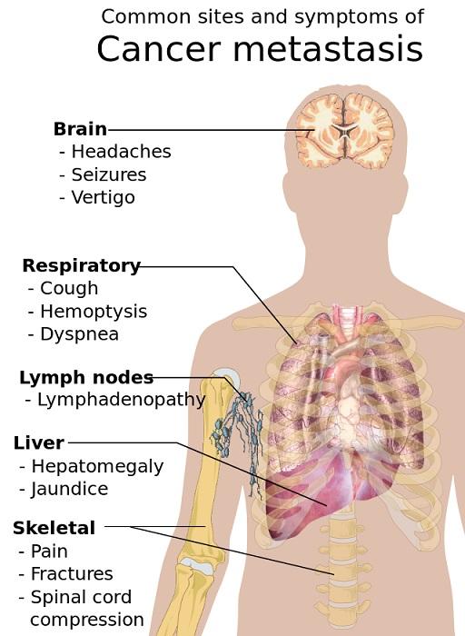 Symptoms_of_cancer_metastasis